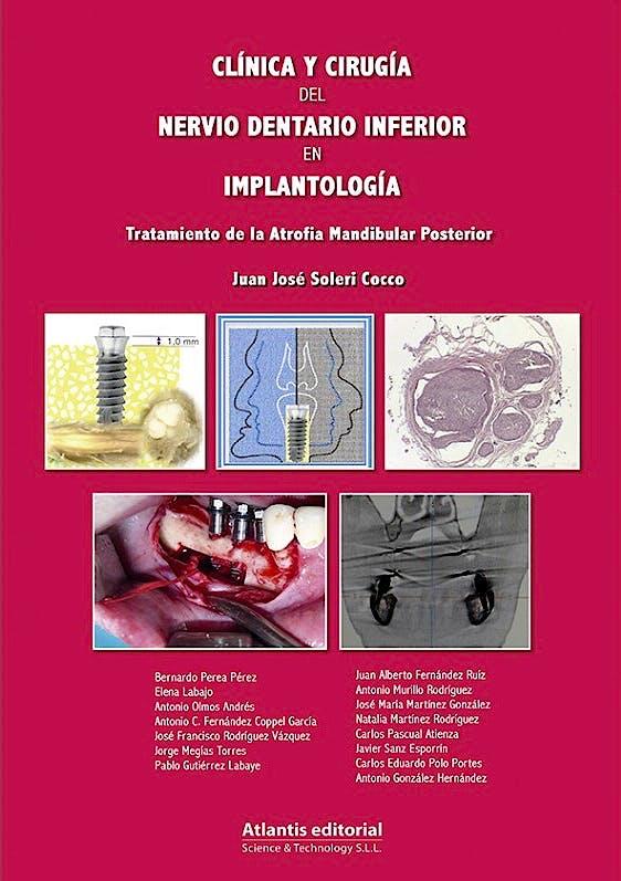 Portada del libro 9788494559051 Clínica y Cirugía del Nervio Dentario Inferior en Implantología. Tratamiento de la Atrofia Mandibular Posterior