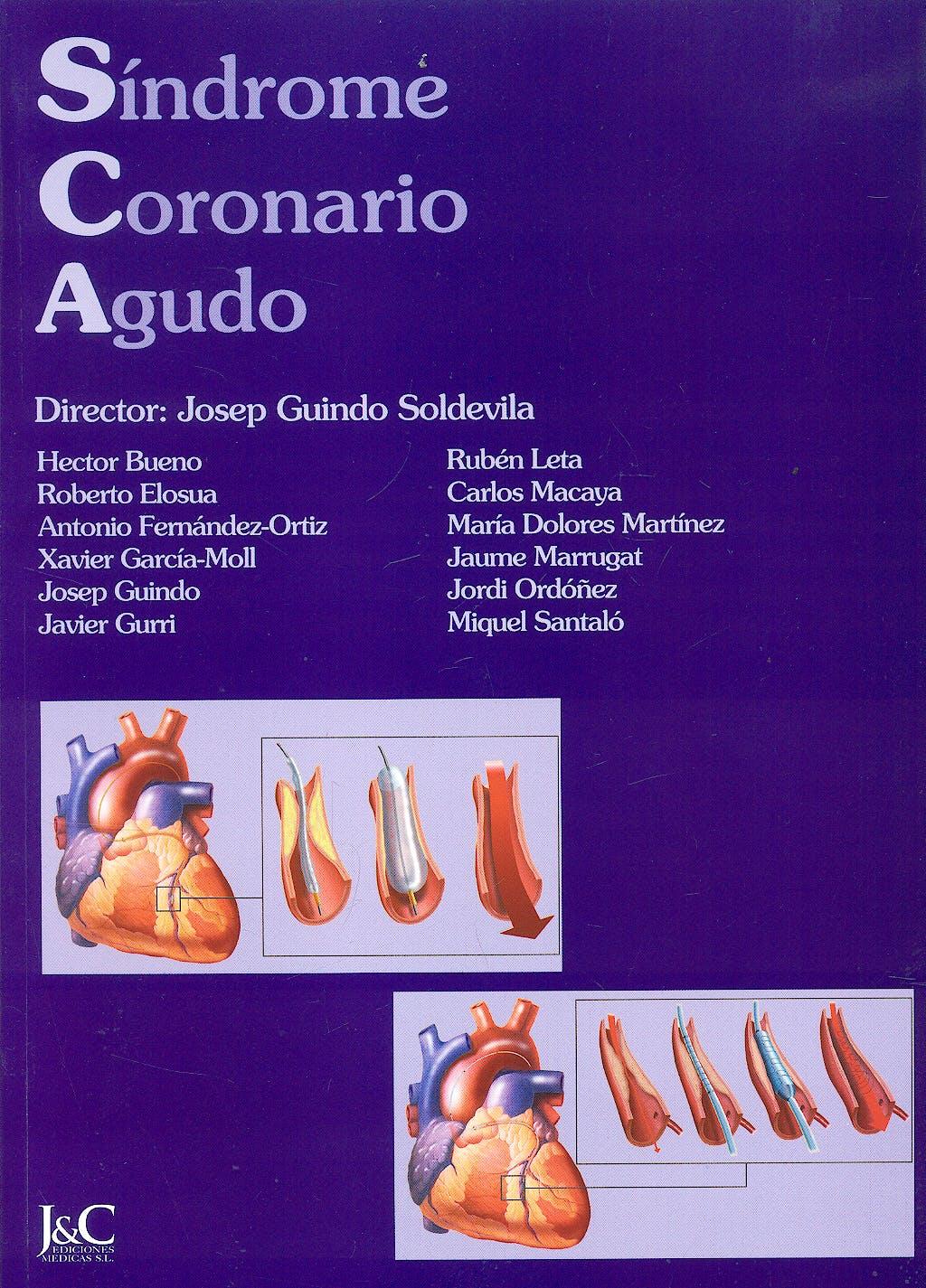 Portada del libro 9788495182265 Sindrome Coronario Agudo