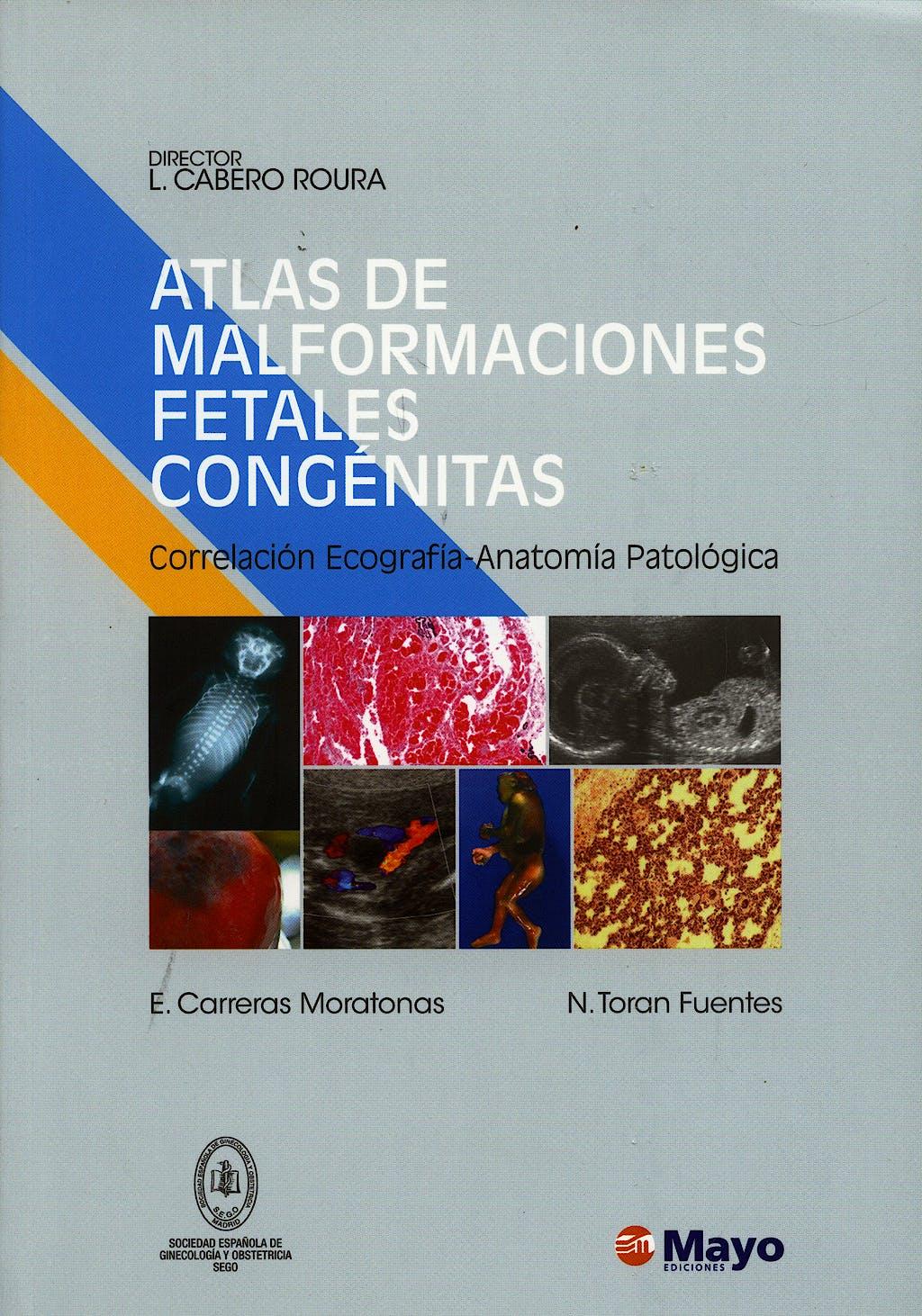 Portada del libro 9788496792036 Atlas de Malformaciones Fetales Congenitas
