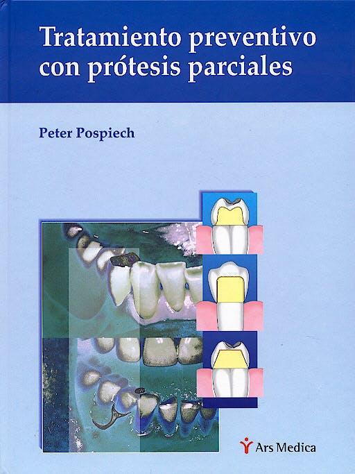 Portada del libro 9788497510134 Tratamiento Preventivo con Prótesis Parciales