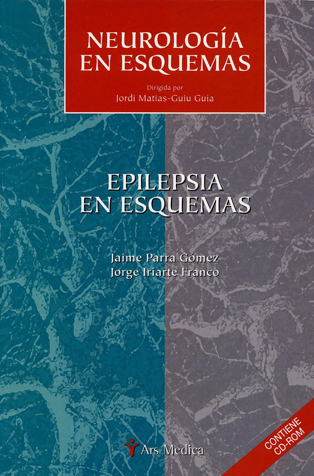 Portada del libro 9788497511827 Epilepsia en Esquemas. Neurologia en Esquemas