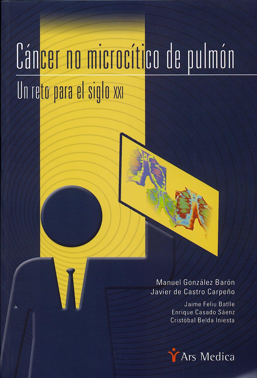 Portada del libro 9788497512008 Cancer no Microcitico de Pulmon