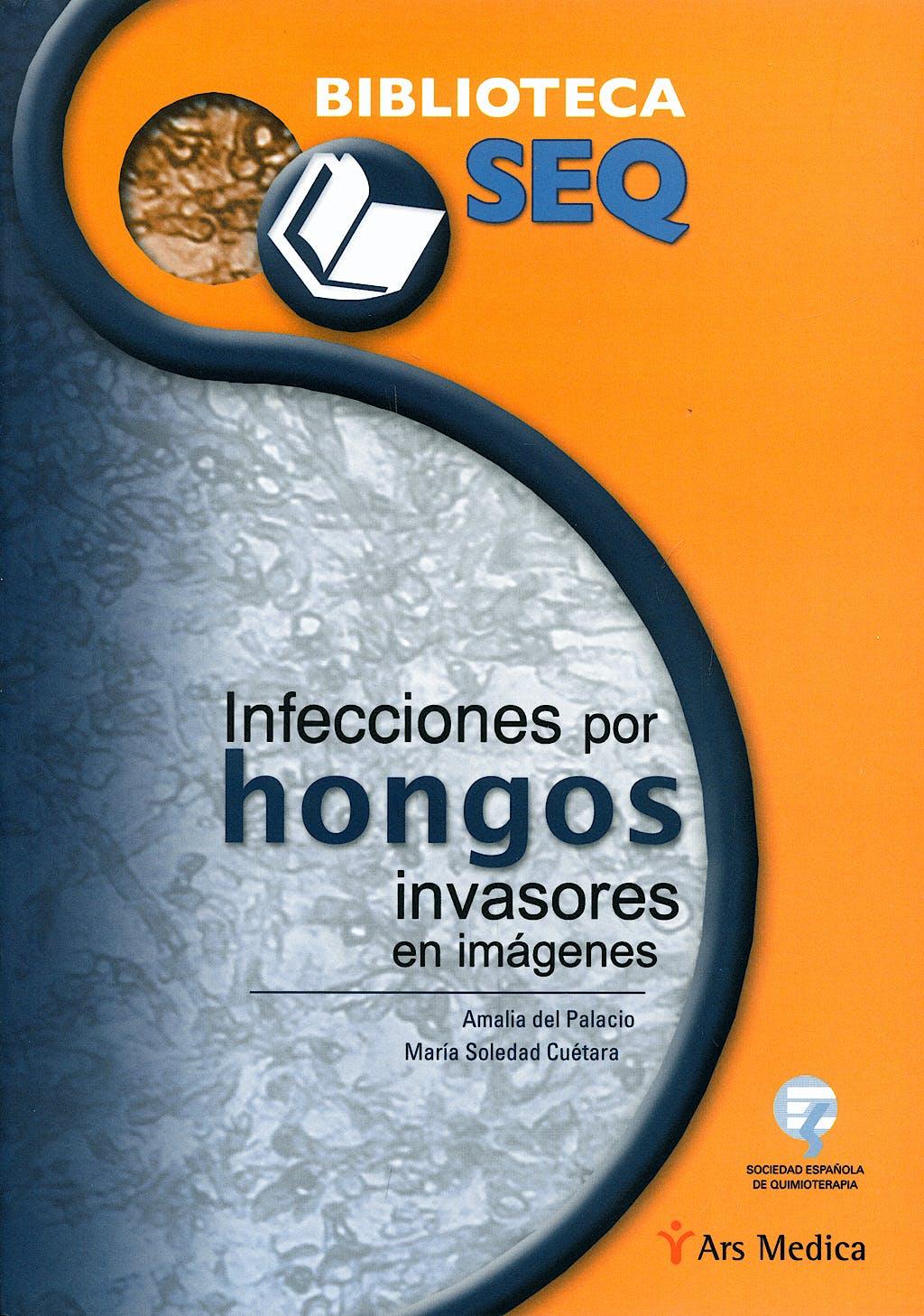 Portada del libro 9788497513562 Infecciones por Hongos Invasores en Imágenes