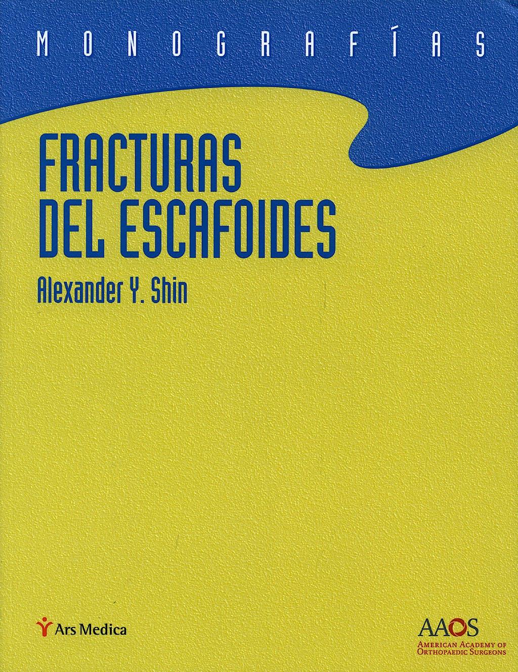 Portada del libro 9788497513838 Fracturas del Escafoides. Monografías