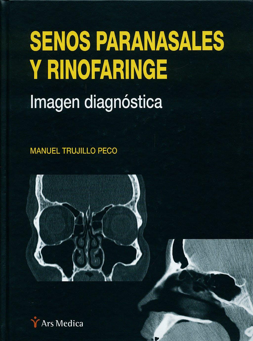 Portada del libro 9788497513852 Senos Paranasales y Rinofaringe. Imagen Diagnostica