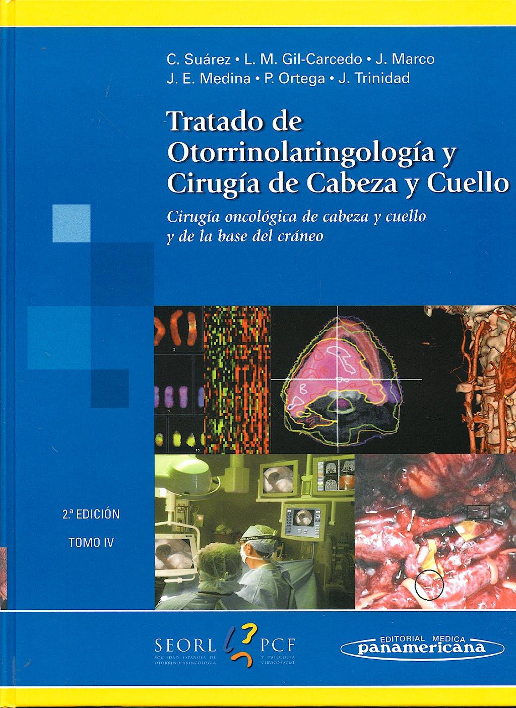 Portada del libro 9788498350784 Tratado de Otorrinolaringología y Cirugía de Cabeza y Cuello, Tomo IV: Cirugía Oncológica de Cabeza y Cuello y de la Base del Craneo