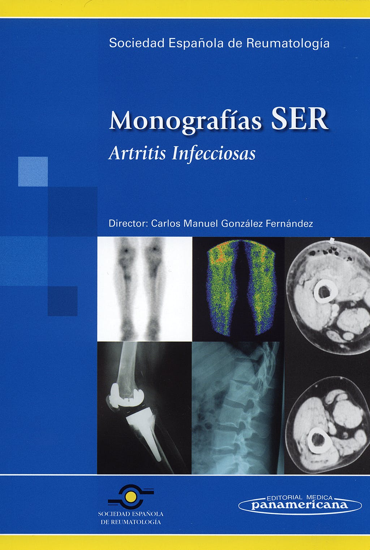 Portada del libro 9788498351453 Artritis Infecciosas. Monografias Ser