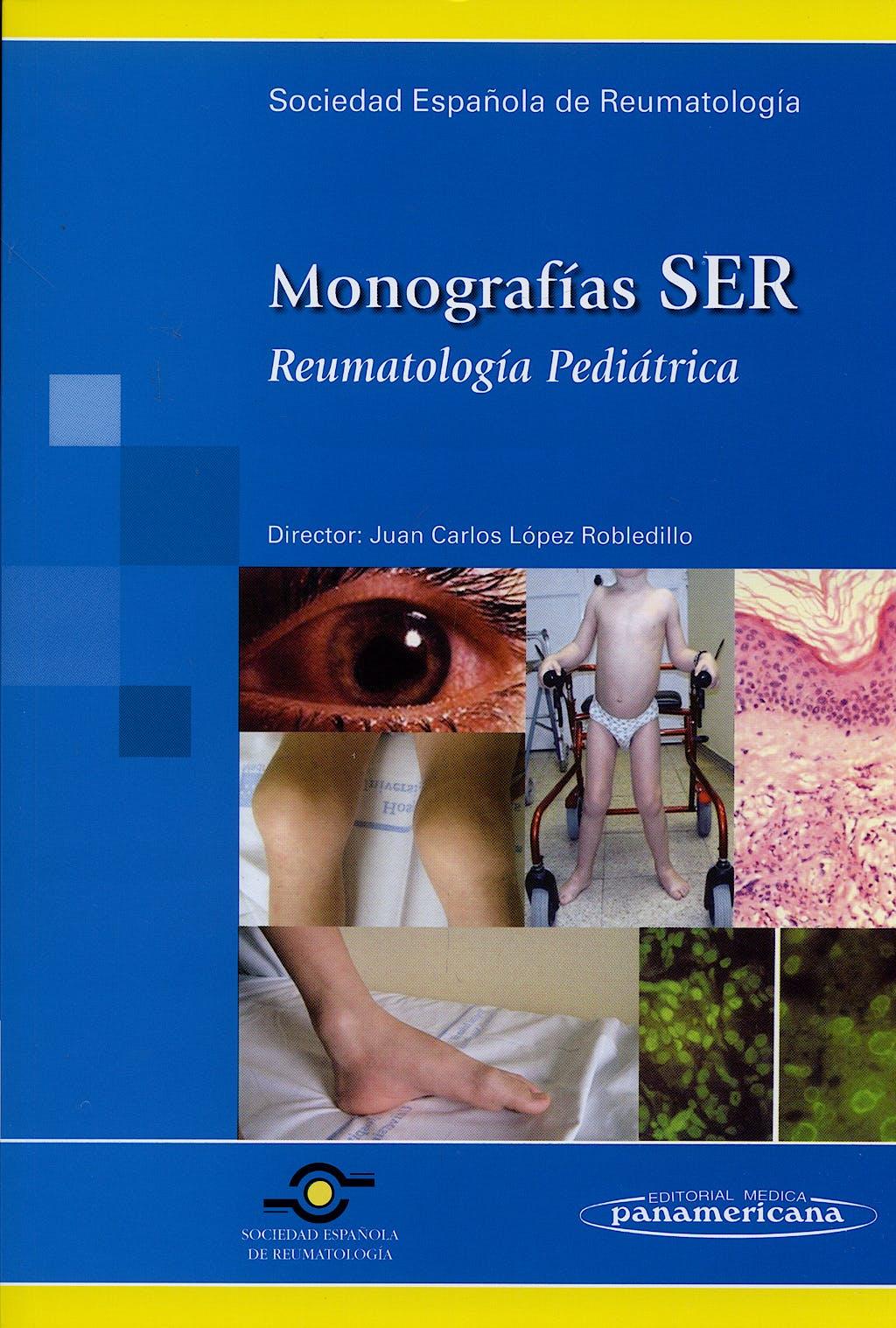 Portada del libro 9788498351460 Reumatología Pediátrica. Monografías SER
