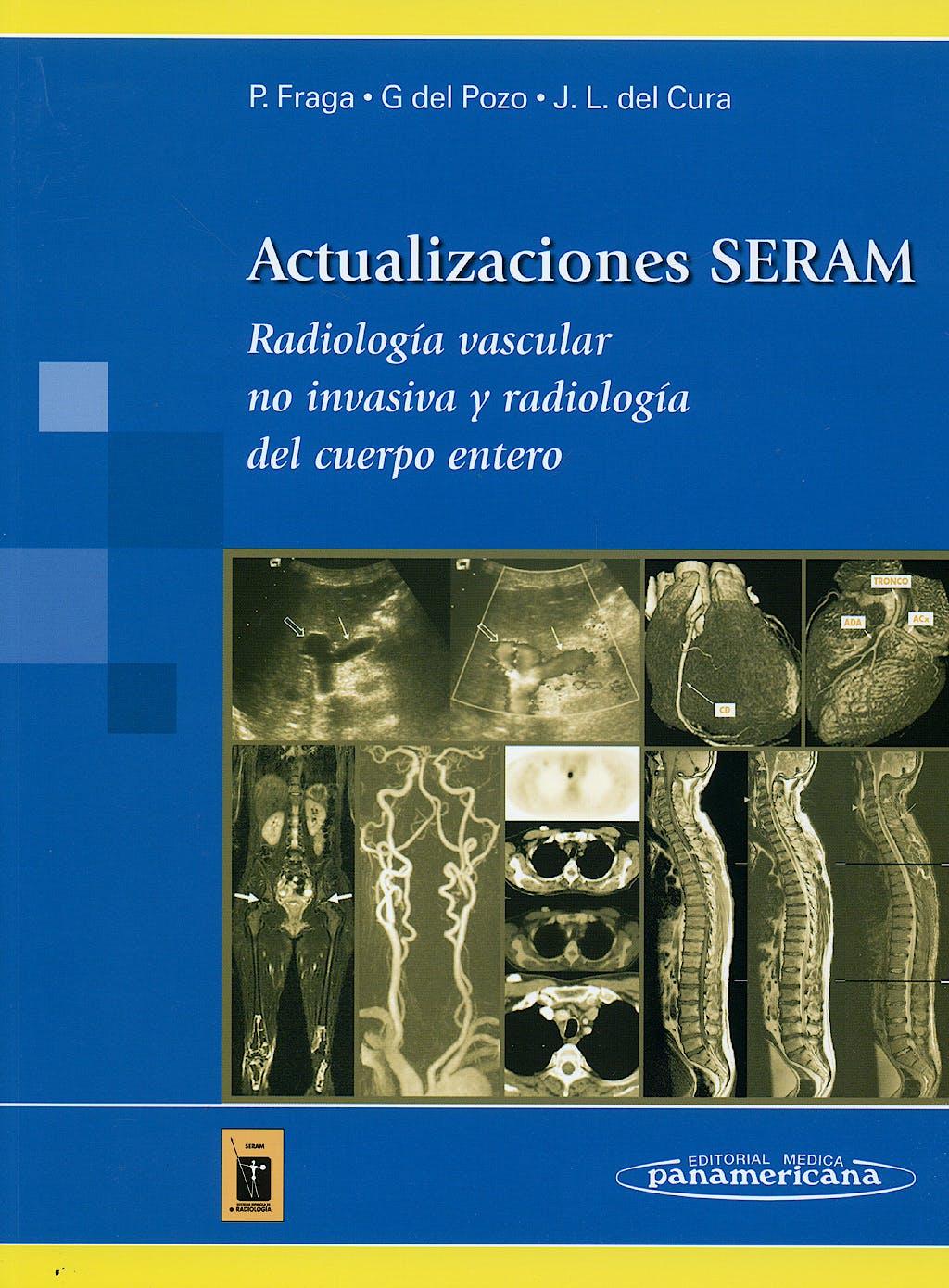 Portada del libro 9788498351651 Actualizaciones SERAM. Radiología Vascular no Invasiva y Radiología del Cuerpo Entero