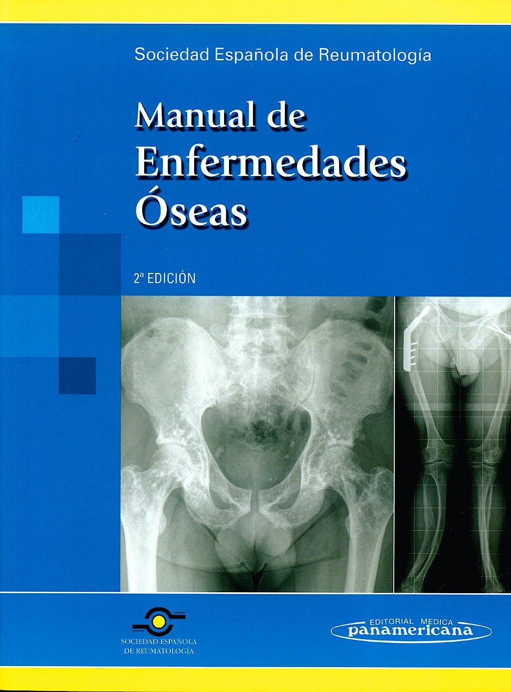 Portada del libro 9788498352306 Manual de Enfermedades Oseas
