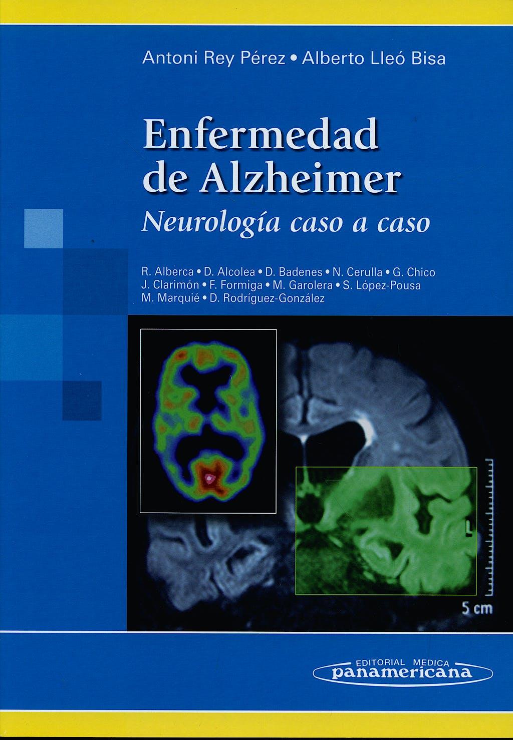 Portada del libro 9788498352634 Enfermedad de Alzheimer. Neurologia caso a Caso