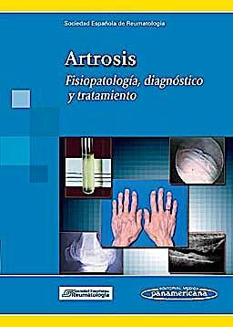 Portada del libro 9788498353303 Artrosis. Fisiopatología, Diagnóstico y Tratamiento