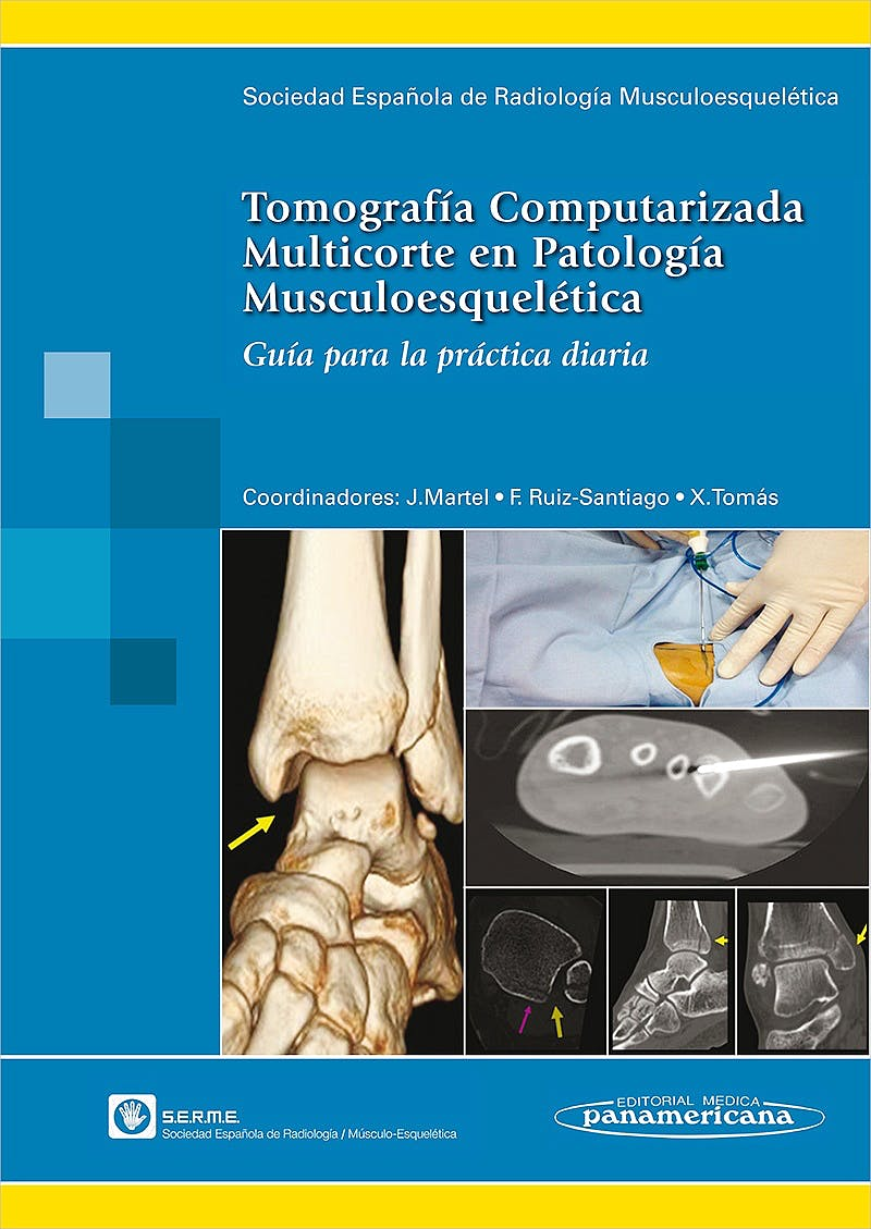 Portada del libro 9788498355192 Tomografía Computarizada Multicorte en Patología Musculoesquelética. Guía para la Práctica Diaria