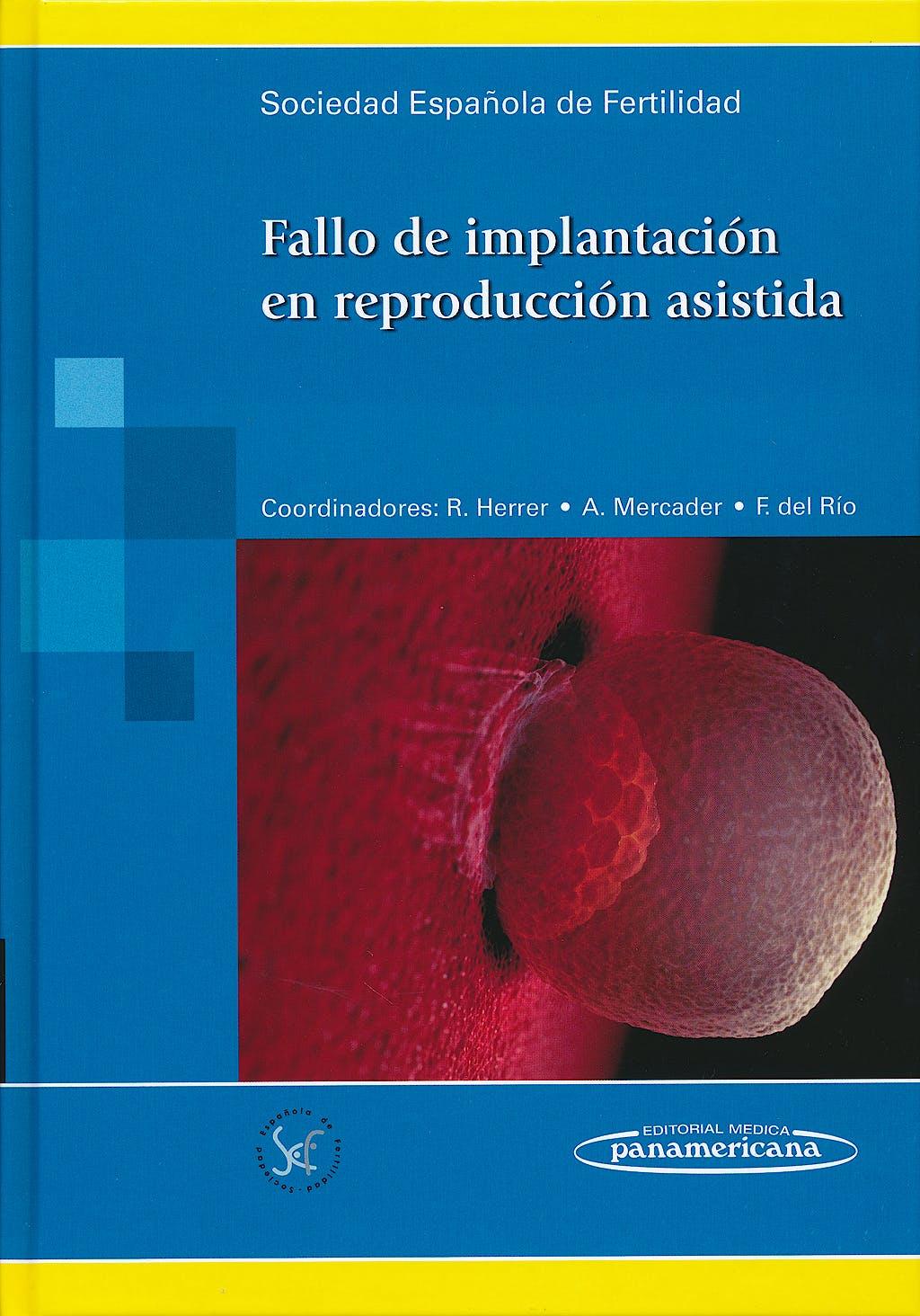 Portada del libro 9788498355680 Fallo de Implantacion en Reproduccion Asistida
