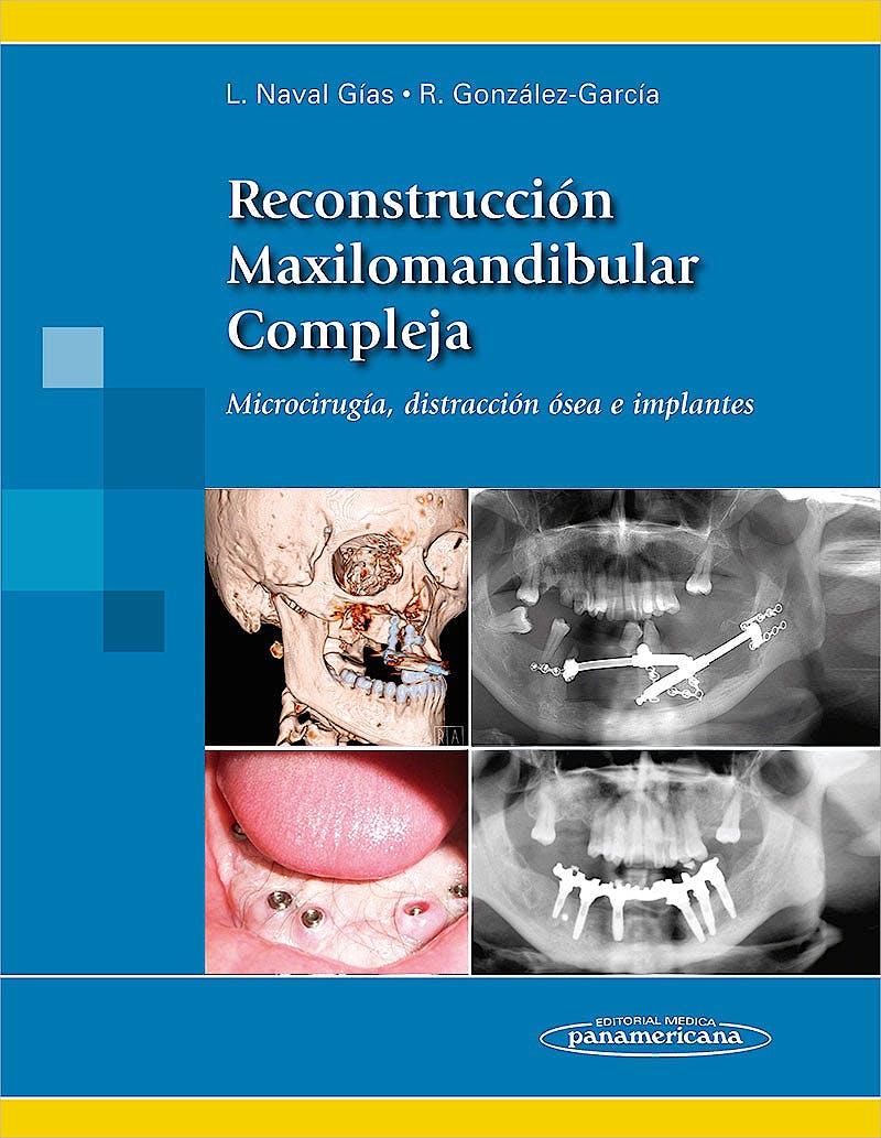 Portada del libro 9788498356083 Reconstruccion Maxilomandibular Compleja. Microcirugia, Distraccion Osea e Implantes