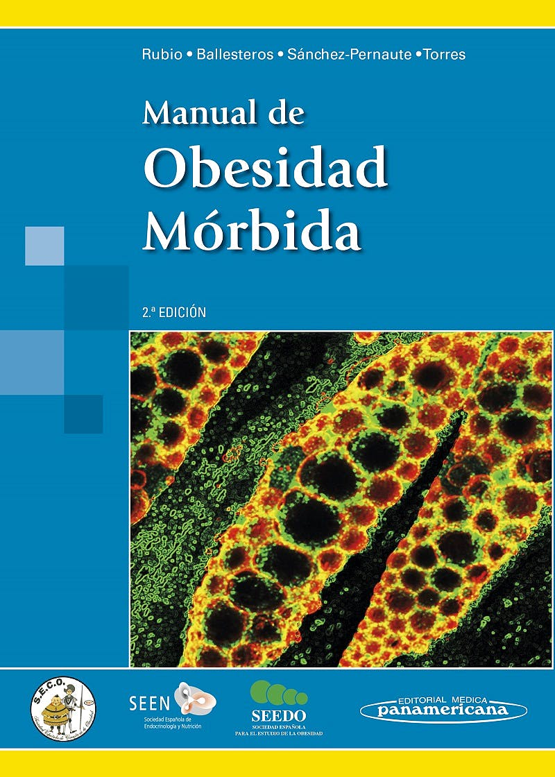 Portada del libro 9788498358476 Manual de Obesidad Mórbida