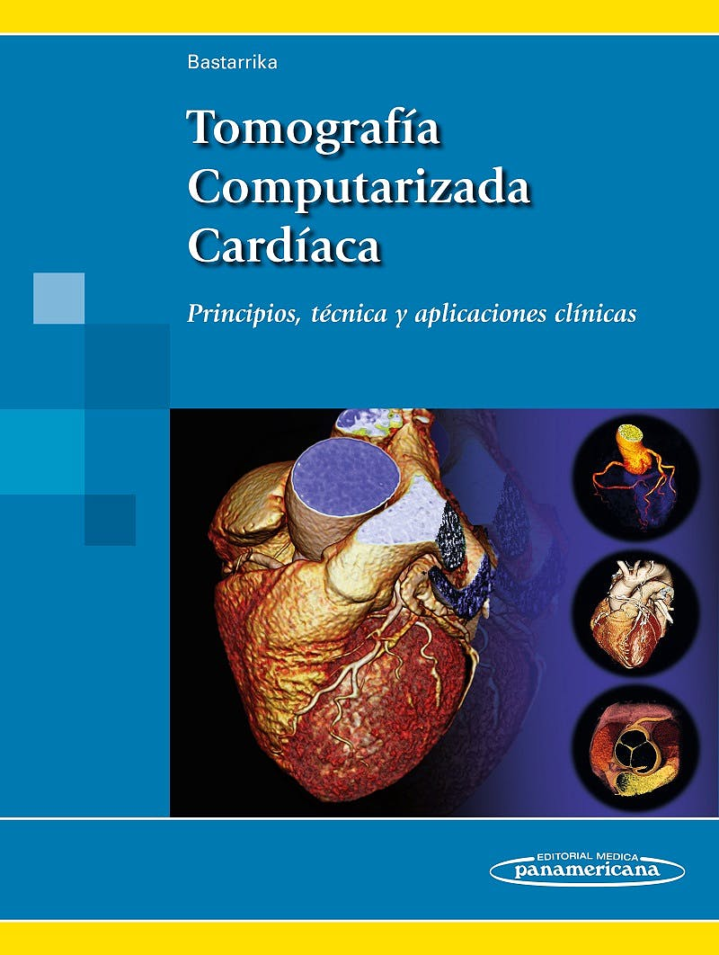 Portada del libro 9788498358681 Tomografia Computarizada Cardiaca. Principios, Tecnica y Aplicaciones Clinicas