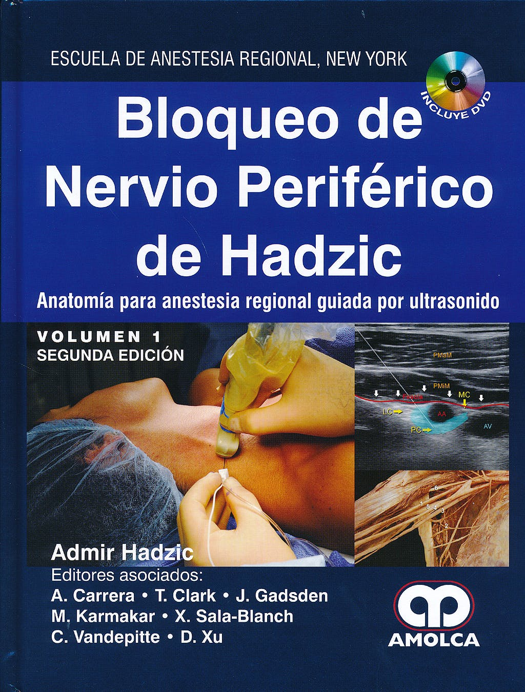 Portada del libro 9788498723311 Bloqueo de Nervio Periférico de Hadzic, 2 Vols. + DVD
