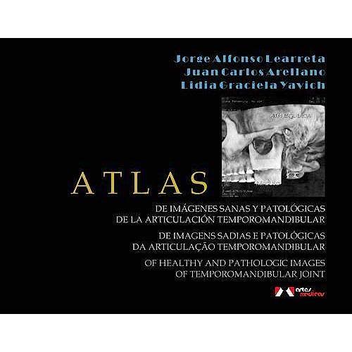 Portada del libro 9788536700700 Atlas de Imagenes Sanas y Patologicas de la Articulacion Temporomandibular (Contenido en Tres Idiomas: Español, Ingles y Portugues)
