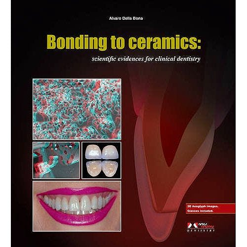 Portada del libro 9788536700915 Bonding to Ceramics: Scientific Evidences for Clinical Dentistry