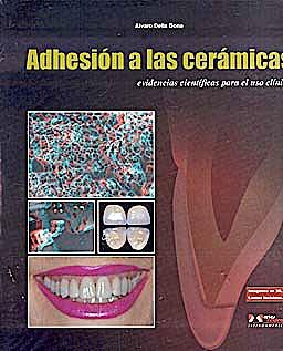 Portada del libro 9788536700953 Adhesion a las Ceramicas. Evidencias Cientificas para el Uso Clinico (Imagenes en 3d, Gafas Incluidas)