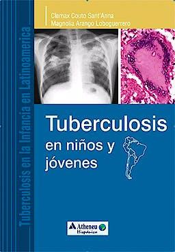 Portada del libro 9788538801849 Tuberculosis en Niños y Jóvenes (Tuberculosis en la Infancia en Latinoamérica)