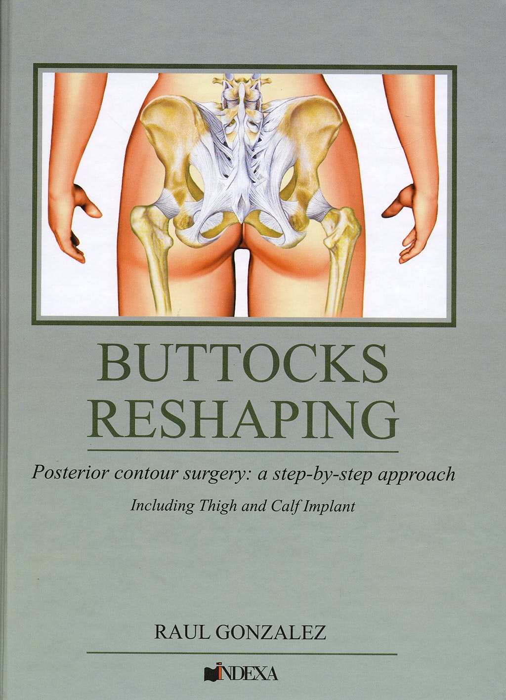 Portada del libro 9788560138005 Buttocks Reshaping. Posterior Contour Surgery: A Step by Step Approach + DVD