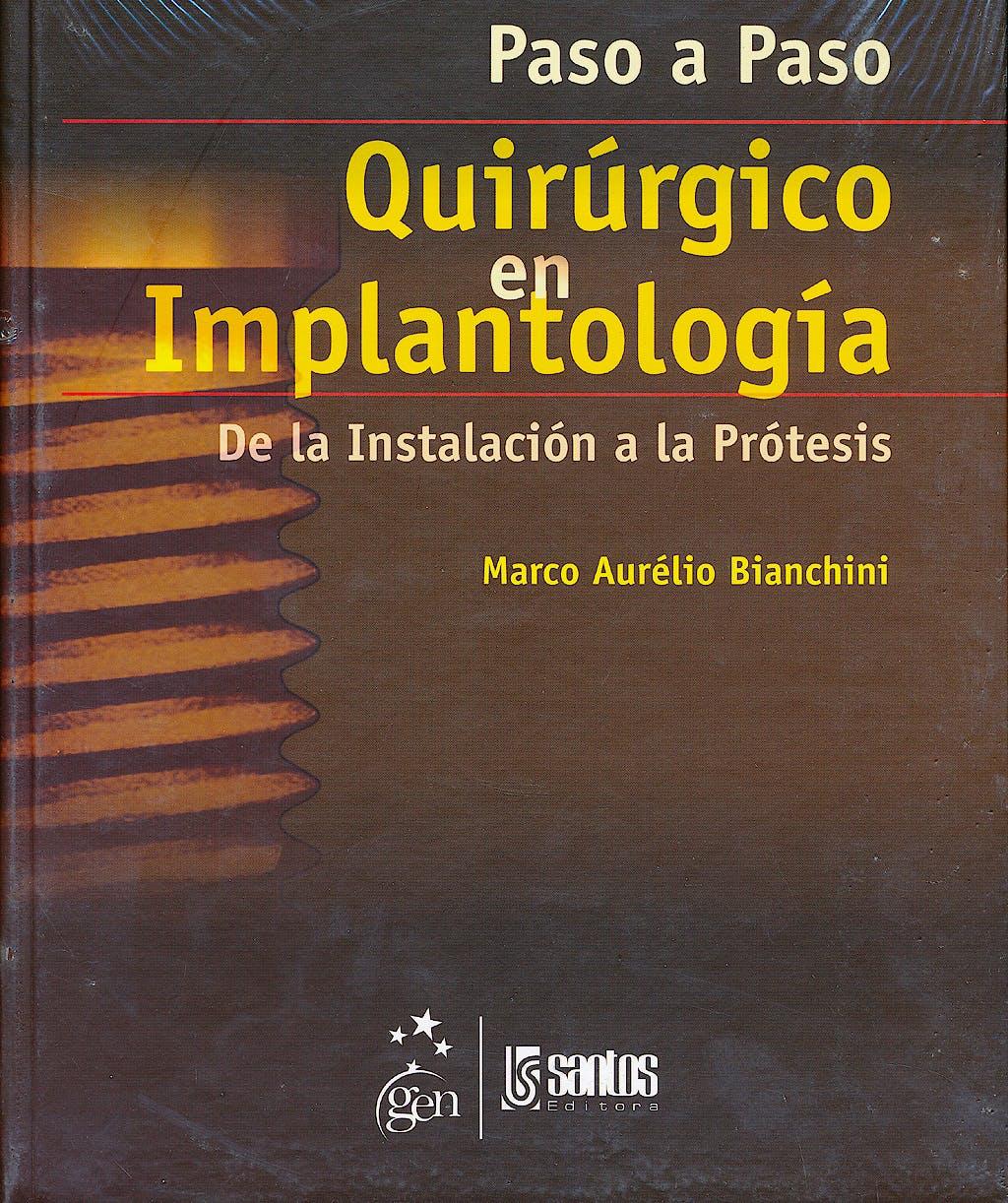 Portada del libro 9788572888141 Paso a Paso Quirurgico en Implantologia.  de la Instalacion a la Protesis
