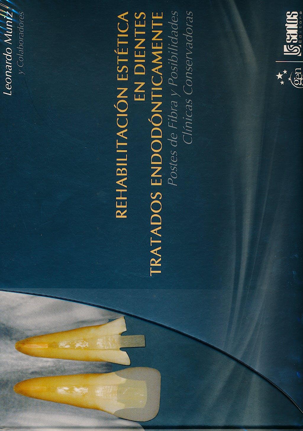 Portada del libro 9788572888813 Rehabilitacion Estetica en Dientes Tratados Endodonticamente. Postes de Fibra y Posibilidades Clinicas Conservadoras