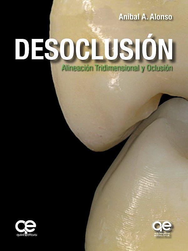 Portada del libro 9788578891770 Desoclusión. Alineación Tridimensional y Oclusión