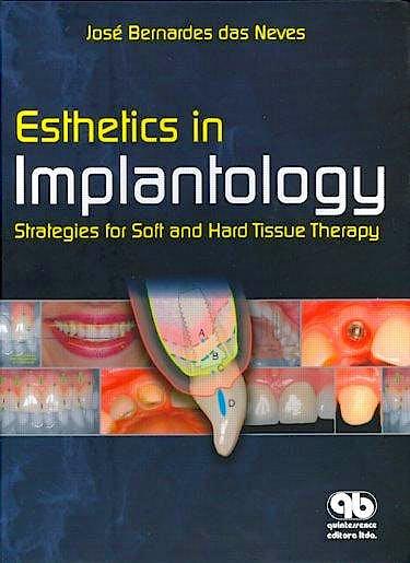 Portada del libro 9788587425911 Esthetics in Implantology