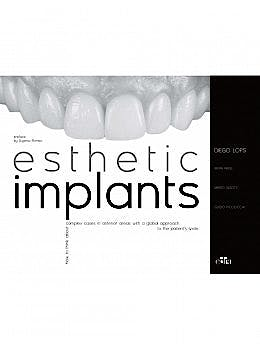 Portada del libro 9788821453267 Esthetic Implants. How to Think About Complex Cases in Anterior Areas with a Global Approach to the Patient Smile