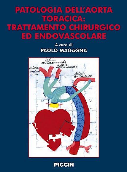 Portada del libro 9788829922901 Patologia Dell'aorta Toracica: Trattamento Chirurgico Ed Endovascolare
