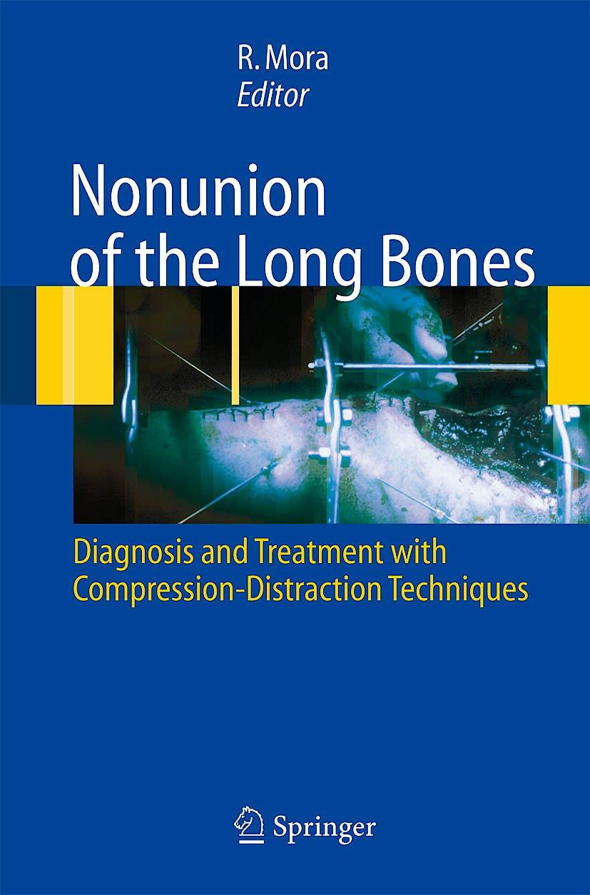 Portada del libro 9788847004085 Nonunion of the Long Bones. Diagnosis and Treatment with Compression-Distraction Techniques