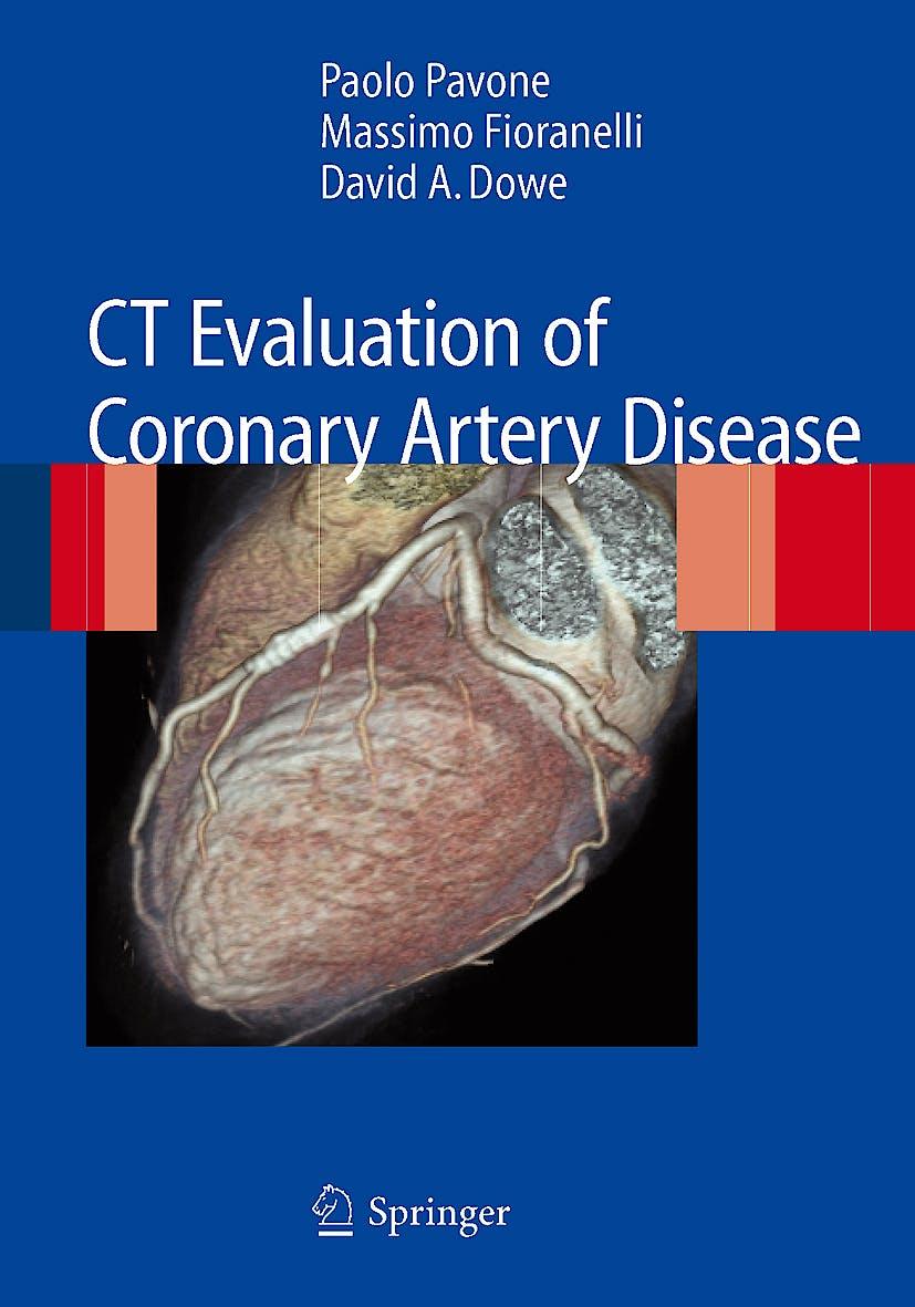 Portada del libro 9788847011250 Ct Evaluation of Coronary Artery Disease