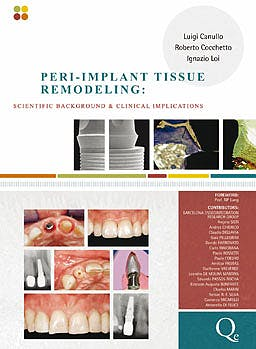 Portada del libro 9788874921669 Peri-Implant Tissue Remodeling, Scientific Background and Clinical Implications