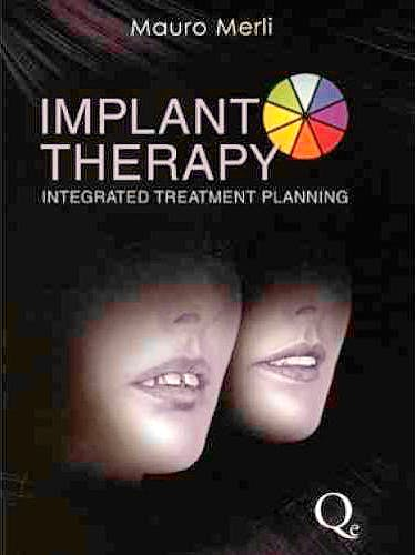 Portada del libro 9788874921706 Implant Therapy. Integrated Treatment Planning, Vol. 1