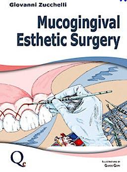 Portada del libro 9788874921713 Mucogingival Esthetic Surgery