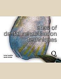 Portada del libro 9788874921782 Atlas of Dental Rehabilitation Techniques