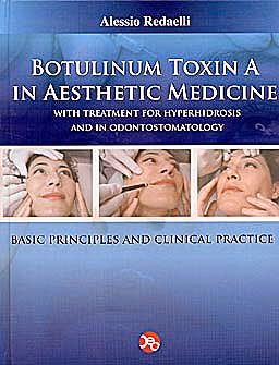 Portada del libro 9788890503313 Botulinum Toxin a in Aesthetic Medicine. with Treatment for Hyperhidrosis and in Odontostomatology