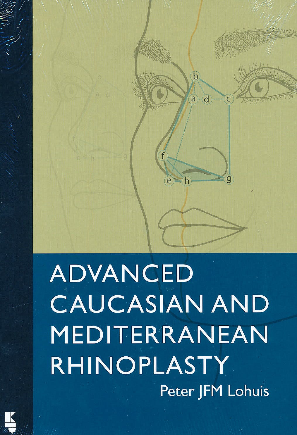 Portada del libro 9789062992386 Advanced Caucasian and Mediterranean Rhinoplasty
