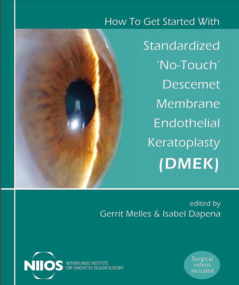 Portada del libro 9789088902772 How to Get Started with Standardized No-Touch Descemet Membrane Endothelial Keratoplasty (DMEK)