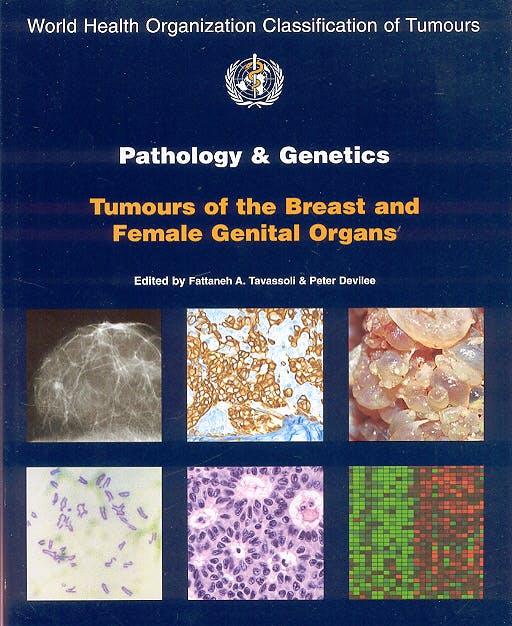 Portada del libro 9789283224129 Pathology and Genetics. Tumours of the Breast and Female Genital Organs (World Health Organization Classification of Tumours)