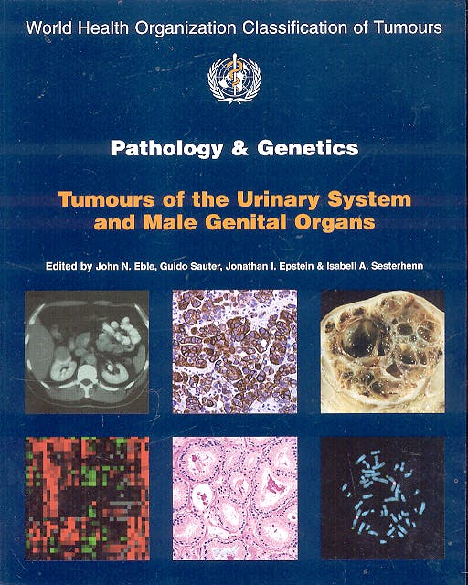 Portada del libro 9789283224150 Pathology and Genetics Tumours of the Urinary System and Male Genital Organs