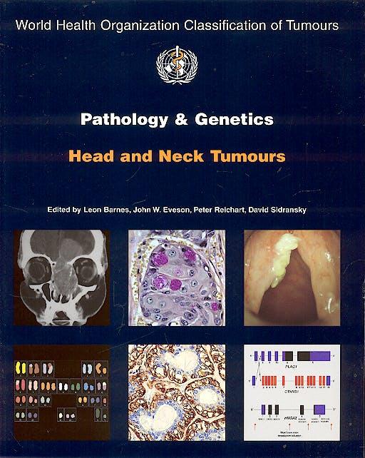 Portada del libro 9789283224174 Pathology and Genetics of Head and Neck Tumours