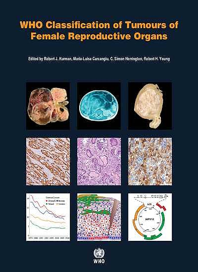 Portada del libro 9789283224358 WHO Classification of Tumours of Female Reproductive Organs (WHO Classification of Tumours, Vol. 6)