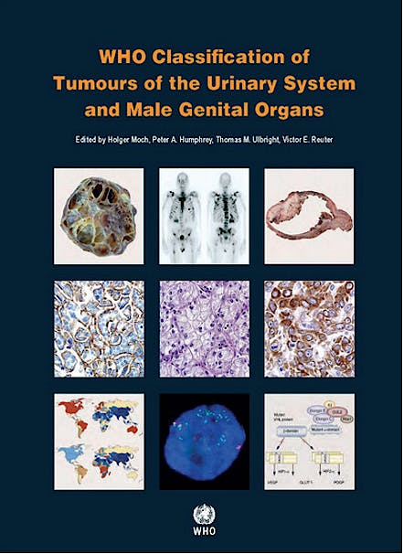 Portada del libro 9789283224372 WHO Classification of Tumours of the Urinary System and Male Genital Organs (WHO Classification of Tumours, Vol. 8)