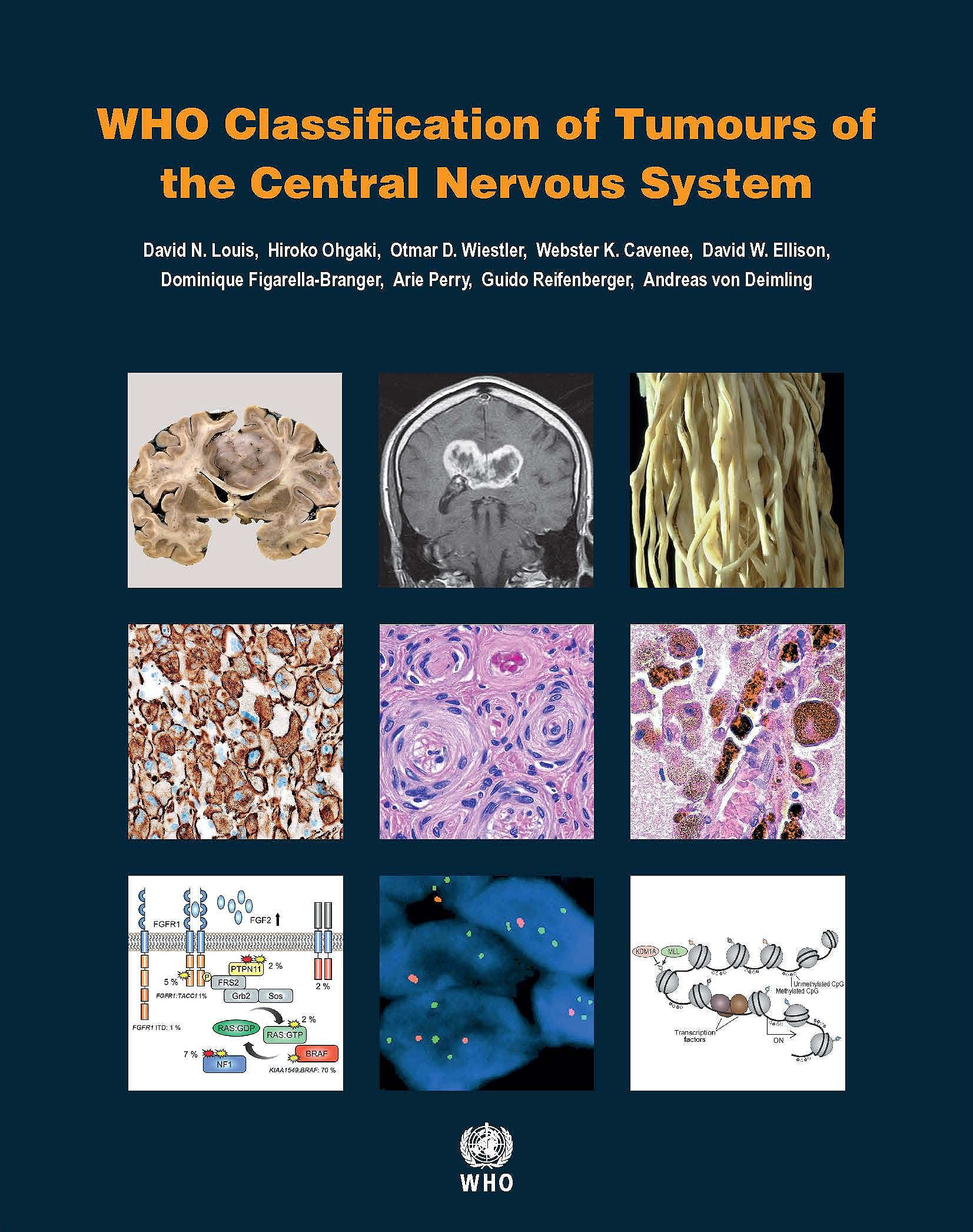 Portada del libro 9789283244929 WHO Classification of Tumours of the Central Nervous System (WHO Classification of Tumours, Vol. 1)