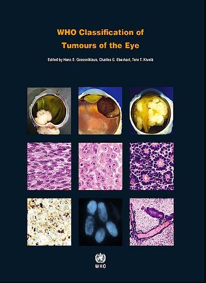 Portada del libro 9789283244974 WHO Classification of Tumours of the Eye (WHO Classification of Tumours, Vol. 12)
