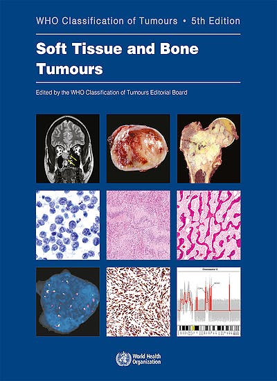 Portada del libro 9789283245025 WHO Classification of Tumours: Soft Tissue and Bone Tumours (WHO Classification of Tumours, Vol. 3)